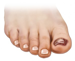 Toenail Falling Off — Causes, Treatment, and Prevention Tips