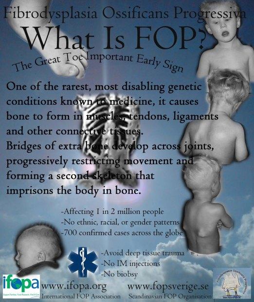 Vad är FOP?