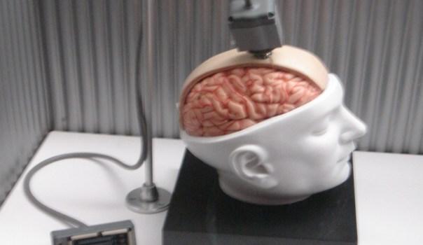 brain-6
