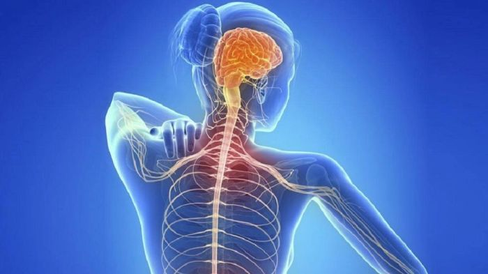 Esclerosis Multiple - Formula Medica