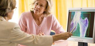 Osteoporosis femenina - Formula Medica