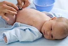 Cordon umbilical - Formula Medica
