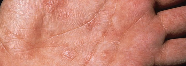 herpes on palm