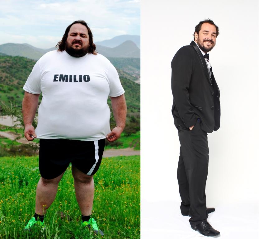 emilio antes y después