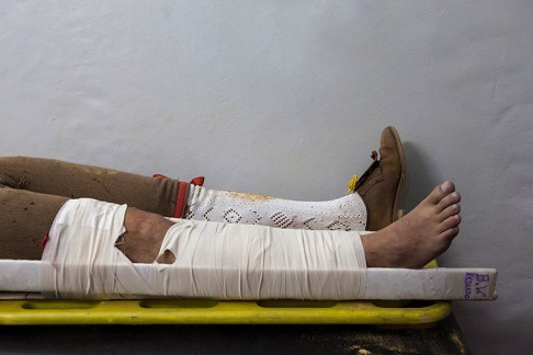 A broken leg: José Martins, member of the group of Forcados of Évora broke his leg after an attempt to wrestle the bull in Redondo, Portugal, 9th August 2013. Forcados get frequent injuries during their career, from broken limbs to more serious injuries like lifelong disabilities or even death.