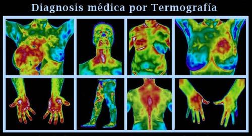 Termografías