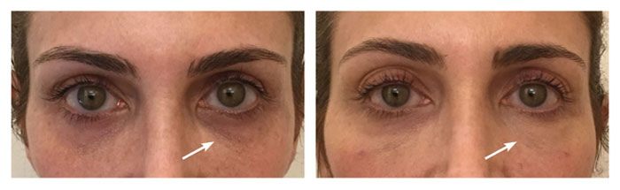 EyeRise-Before-After-Treatment-FountainOf30-Lauren