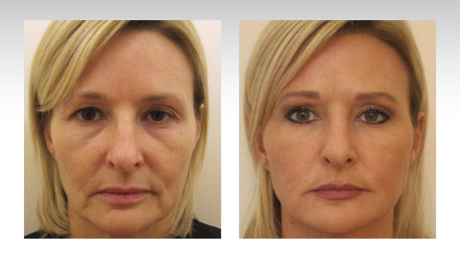 baselift-patient-before-after-blond