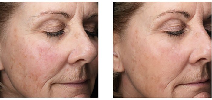 emepelle woman skin before and after photos