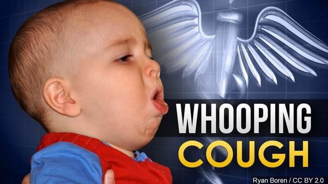 Whooping Cough_1554849271784.jpg-60106293-60106293.jpg