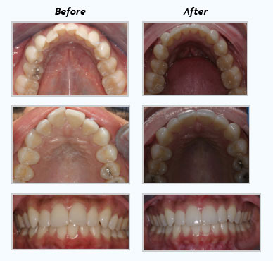 Framingham-Invisalign-patients