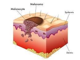 Curare Il Melanoma maligno