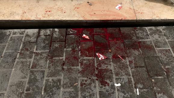 Des traces de sang à l'endroit où un manifestant a été touché au visage par un tir de flash-ball à Bordeaux, le 12 janvier 2019.