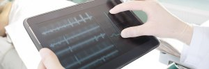 Google Health pioneers breast cancer AI scanning
