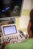 Unser Ultraschallgerät