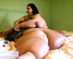 800 pound woman