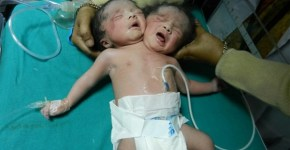 two-headed-baby
