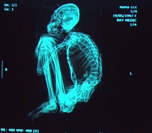 Mummy skeletal scan Peru alien
