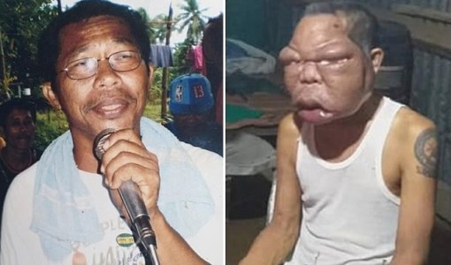 56-year-old Romulo Pilapil