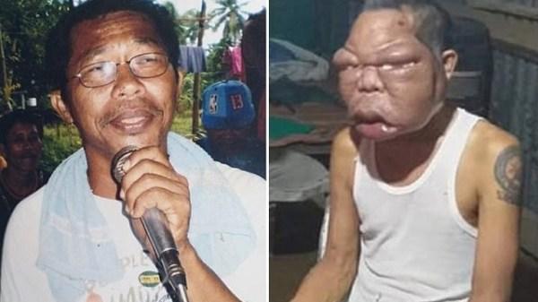 56-year-old Romulo Pilapil