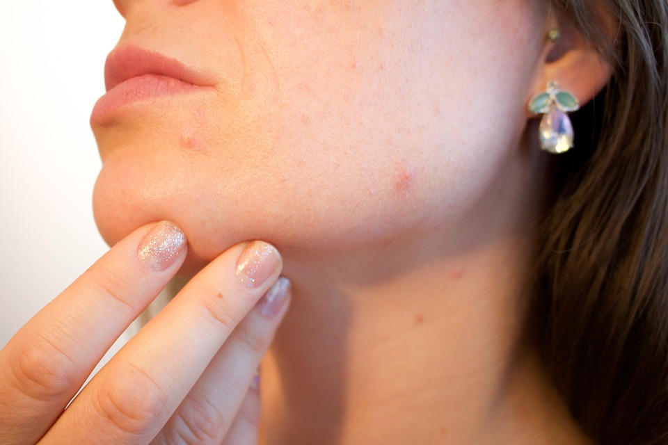 woman showing pimples