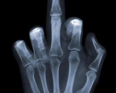 Middle Finger X-Ray
