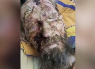 Live Mummy Man Found A Month After Bear Attack