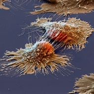 14-05-cancercell-electronmicroscope