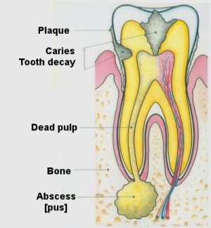 Crack On Molar Tooth Pulled