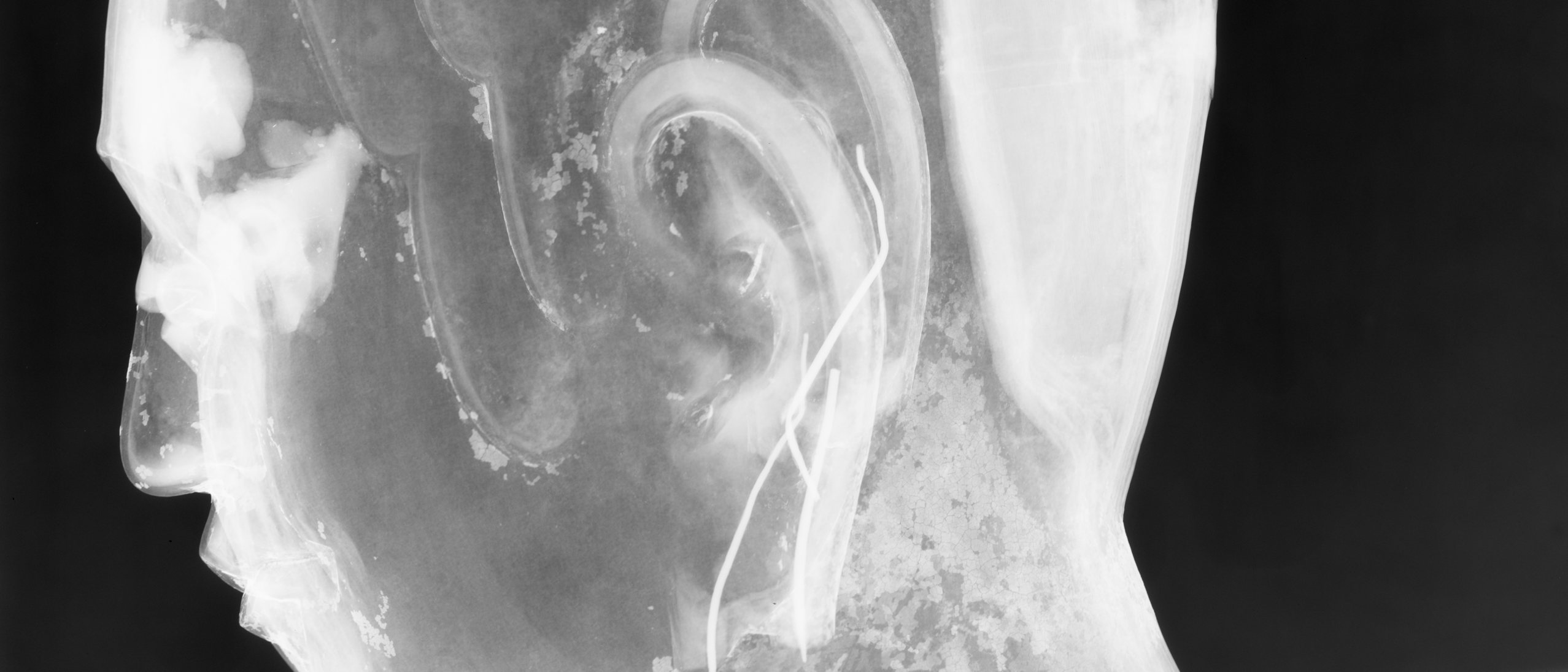 X-ray image of the face of a lacquer Buddha in profile