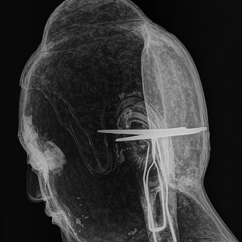side view xray of the Met buffha