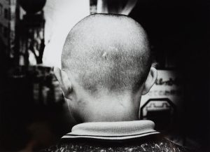 A black and white photo of the back of a child's shaved head