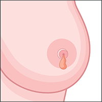 nipple discharge breast cancer