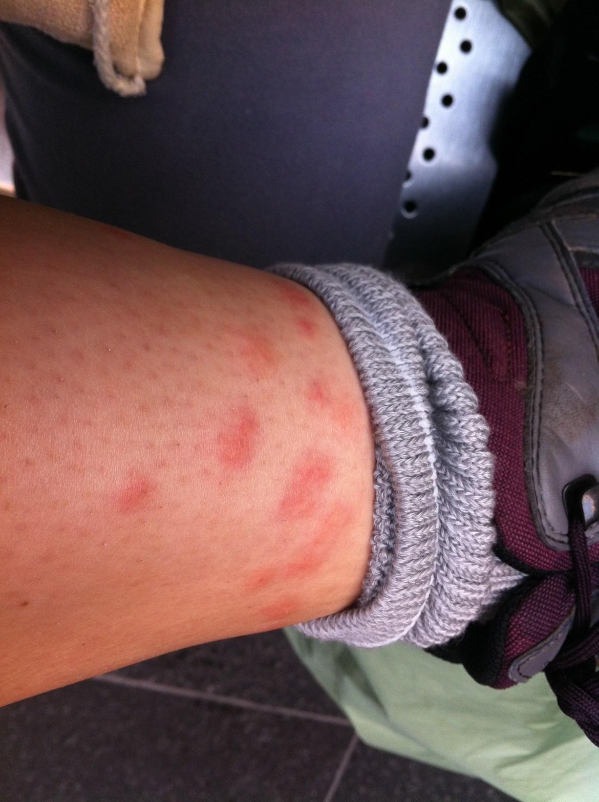 piqûre de midge allergie