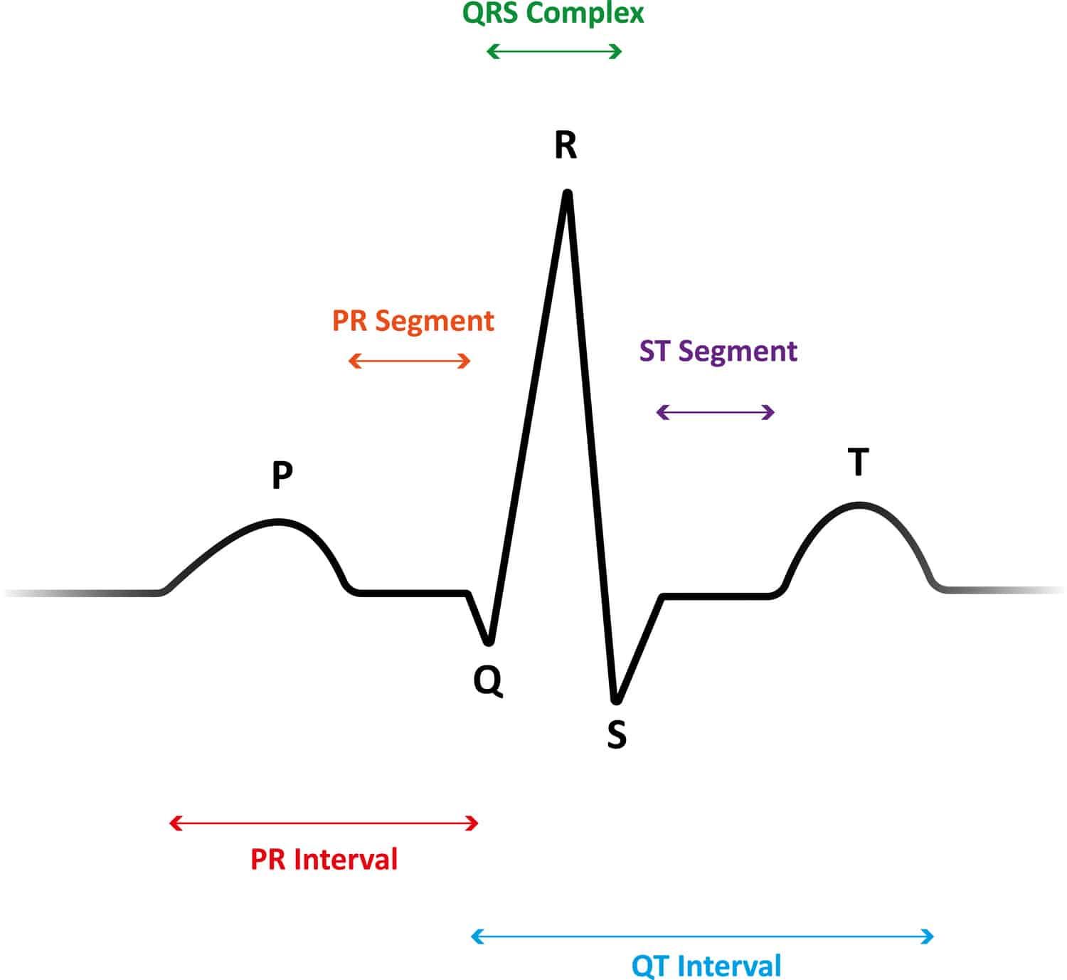5 Lead Ecg Interpretation Electrocardiogram Tips For