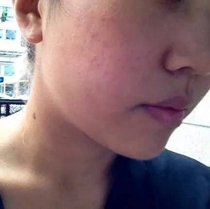 Getting a Fraxel Treatment at TengTeng Skin Clinic in Seoul • Lust