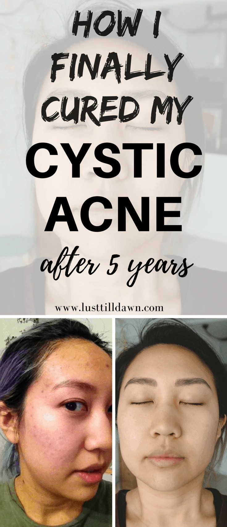How I Cured My Cystic Acne by Discovering Food Allergies and Acid