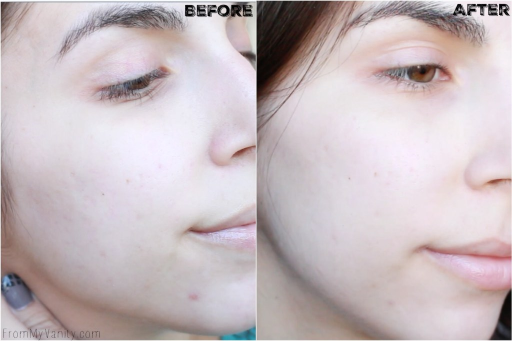 5 Benefits I Experienced from Using My PMD | Personal MicroDerm | Before/After Results | Right Side