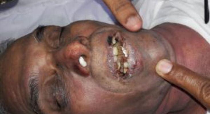 Pastor Kanagraj Dead Body