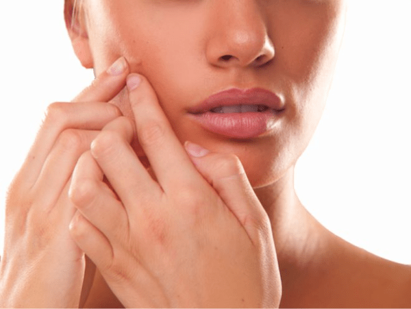 pimple-on-face-meaning-pimples-on-face-removal-tips---viewing-gallery-wallpaper-hd