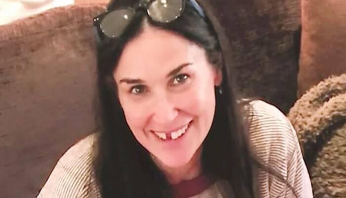 Η Ντέμι Μουρ έχασε τα μπροστινά της δόντια και μας εξηγεί γιατί στέλνοντας ένα δυνατό μήνυμα