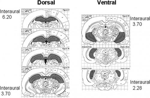 Dorsoventral vs. Septotemporal hippocampus (4/6)