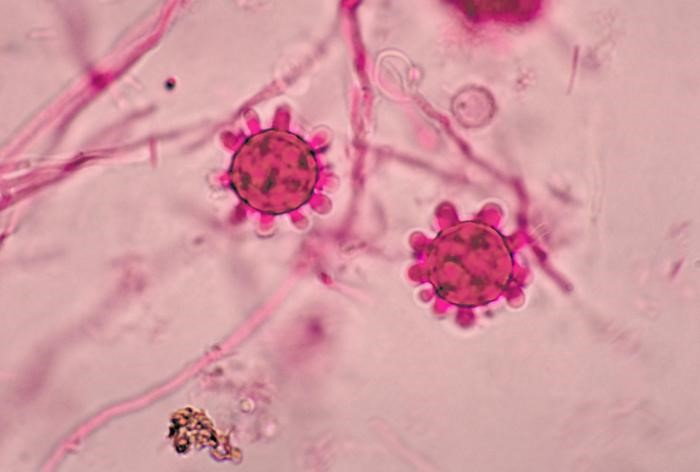 Macroconidia of Histoplasma capsulatum. CDC/Dr. Libero Ajello [Public domain], via Wikimedia Commons