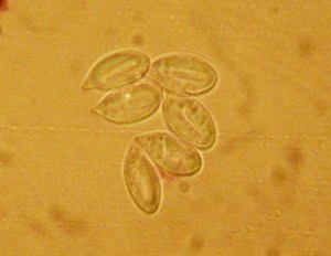 Longitudinally lined Clitopilus spores