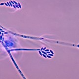 Fusarium verticillioides spores
