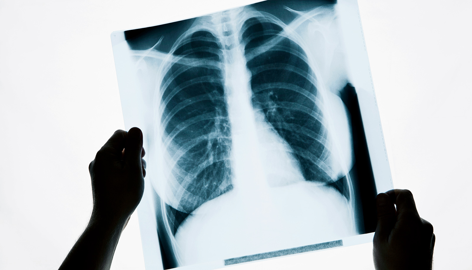 Algorithm Outdoes Radiologists At Spotting Pneumonia In X
