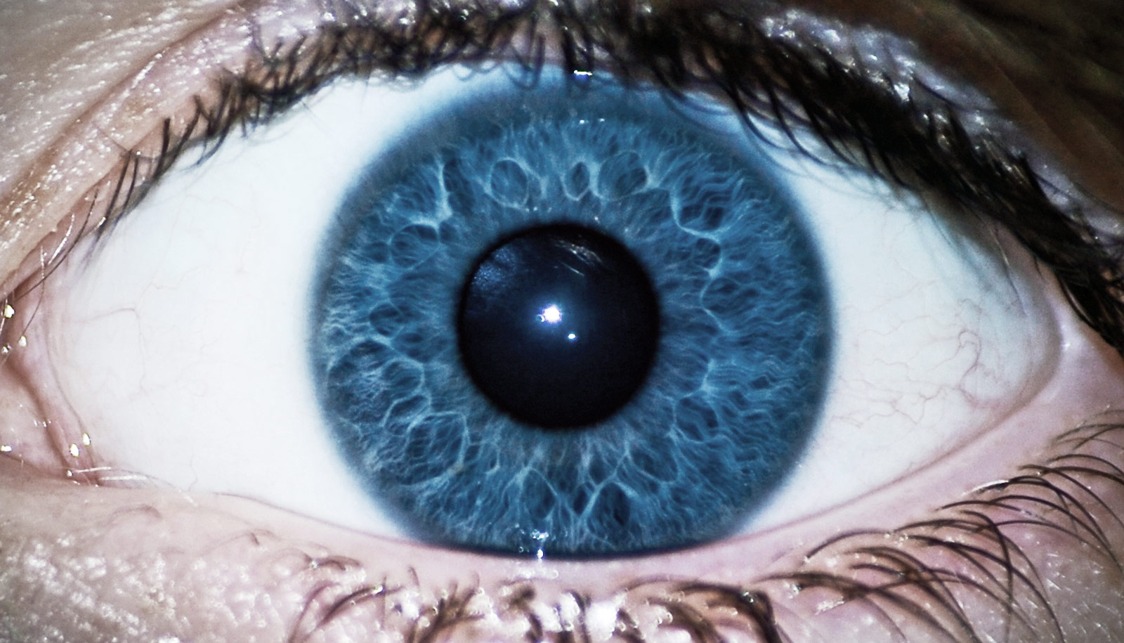 Could This Eye Device Detect Schizophrenia