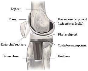 Nieuwe knie operatie