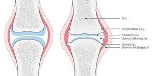 Illustratie bij de fysiotherapiebehandeling Artrose