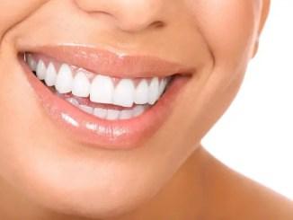 blanqueamiento dental « El blanqueamiento dental led y el blanqueamiento dental con ferulas
